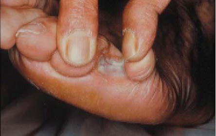 La pasta teymurova del hongo de las uñas